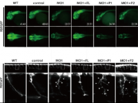 Jia Da's group identified the link between defects in cellular trafficking and Pontocerebellar hypoplasia
